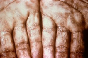800px-Secondary_Syphilis_on_palms_CDC_6809_lores.rsh