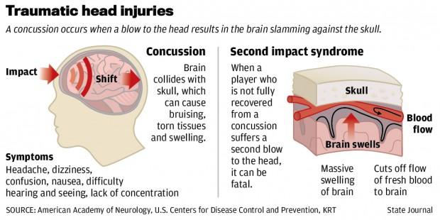 concussiondiagram-2