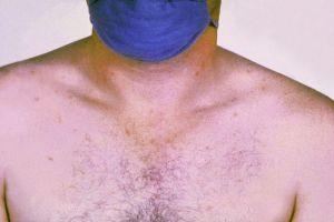 typhoid-spots