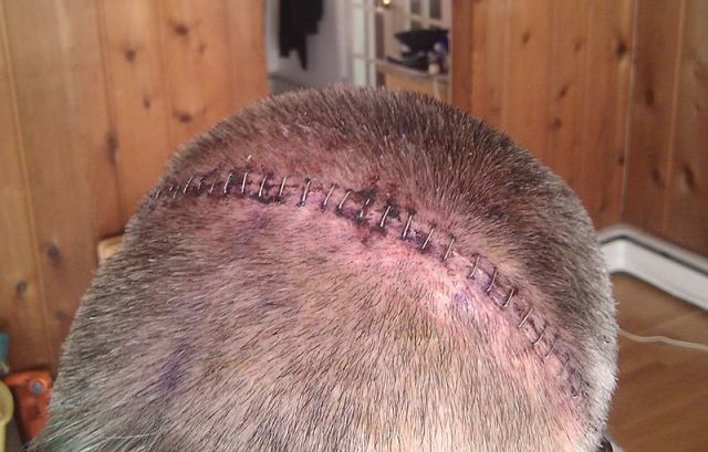 800px-34_surgical_staples_craniotomy