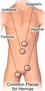 Hernia_Common_Sites